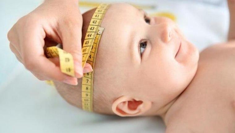 Bebeklerde kafa yamukluğu ve sivriliği neden olur? Kafa şekillenmesi ne zamana kadar sürer?